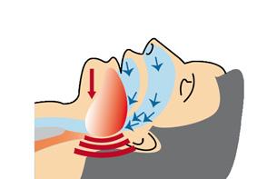 3-Atmungsunterbrechung